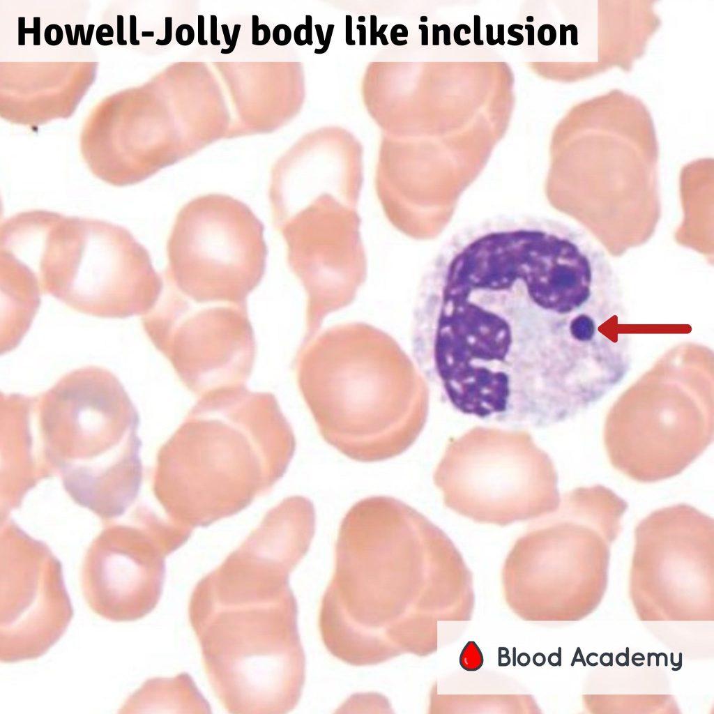 Howell-Jolly bodies in neutrophils
