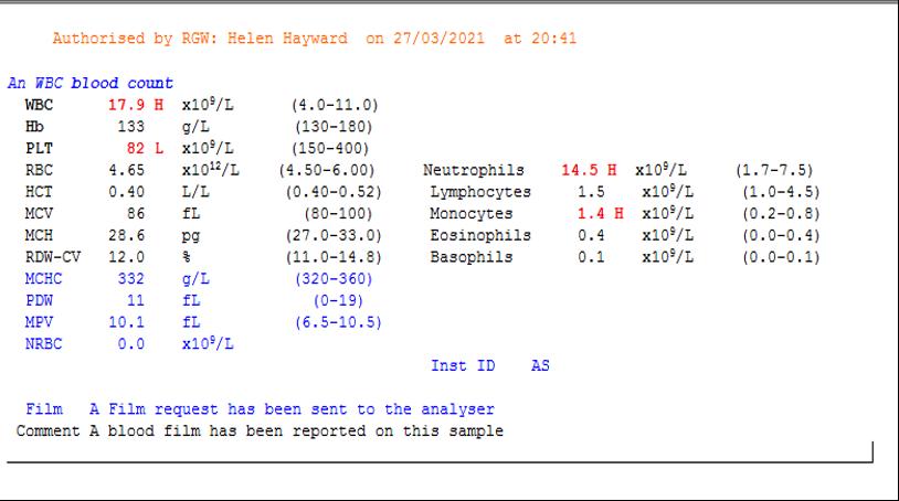 7.1i - D dimer Case Study 1