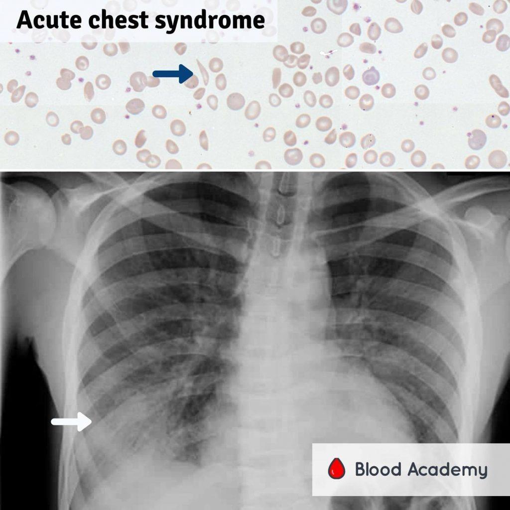 Acute Chest Syndrome (ACS)
