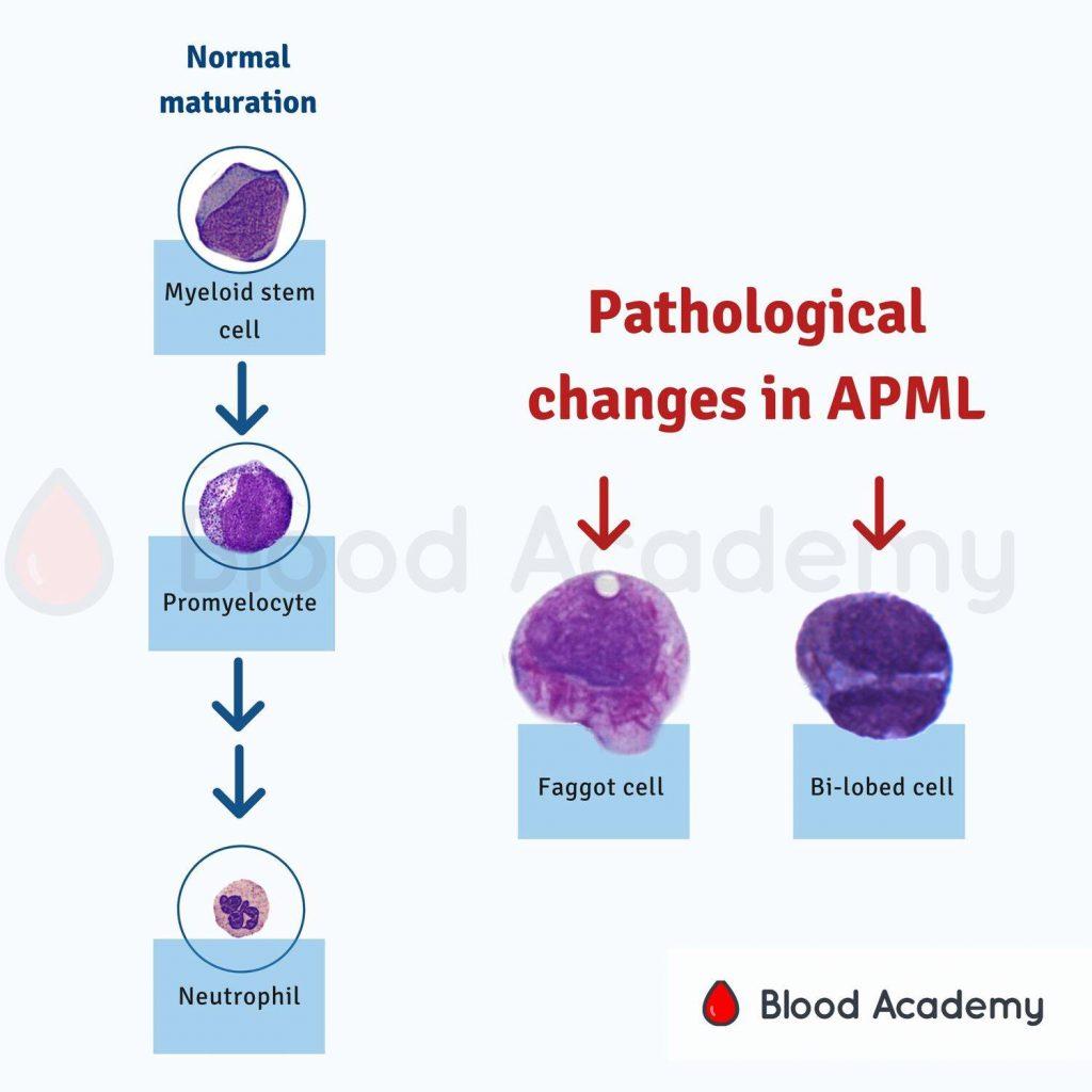 Acute Promyelocytic Leukaemia