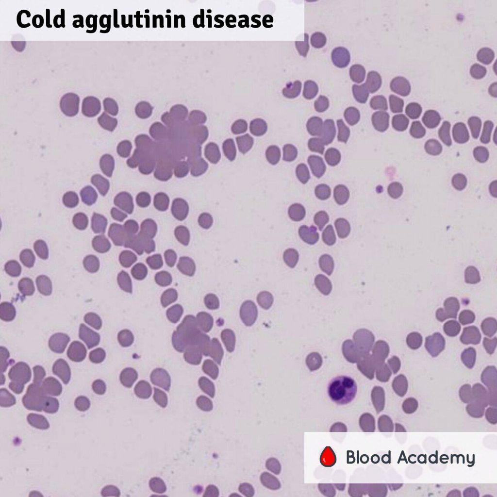 Cold agglutin disease